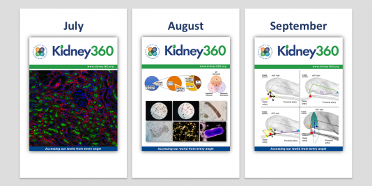 Covers for the July, August, and September issues of Kidney360