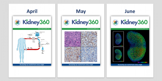 Covers for the April, May, and June issues of Kidney360