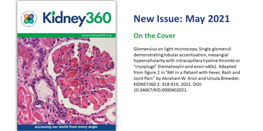 Cover Image of May 2021 Issue of Kidney360