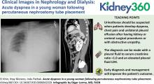 Acute Dyspnea in a Young Woman Following Percutaneous Nephrostomy Tube Placement