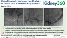 An Unusual Cause of Peritoneal Dialysis Catheter Dysfunction