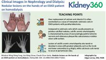Nodular Lesions on the Hands of an ESKD Patient on Hemodialysis