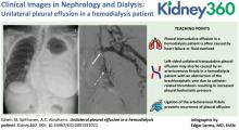 Unilateral Pleural Effusion in a Hemodialysis Patient