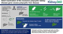 Adult Inactivation of the Recessive Polycystic Kidney Disease Gene Causes Polycystic Liver Disease