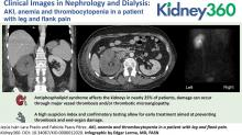 AKI, Anemia, and Thrombocytopenia in a Patient with Leg and Flank Pain