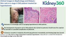 Skin Rash in a Stage 4 CKD Patient Treated for Hyperkalemia