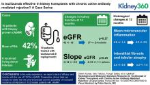 Lack of Histological and Molecular Signature Response to Tocilizumab in Kidney Transplants with Chronic Active Antibody Mediated Rejection: A Case Series