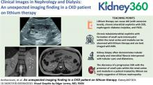 An Unexpected Imaging Finding in a CKD Patient on Lithium Therapy